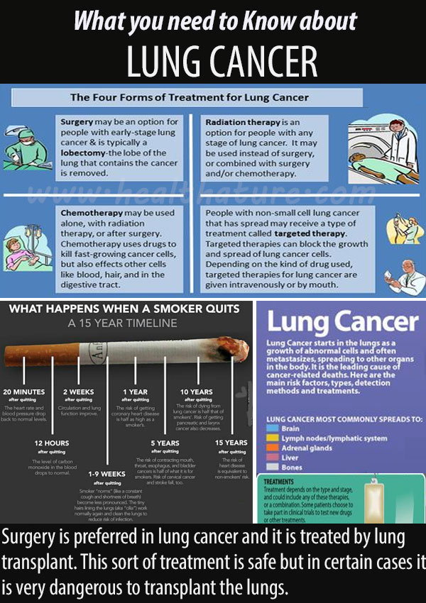 Lung Cancer Symptoms Signs Treatments