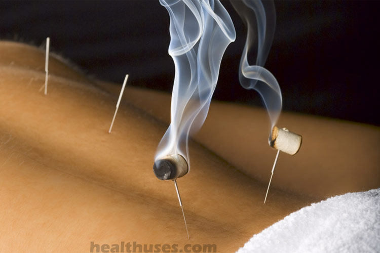 allergy relief with acupuncture